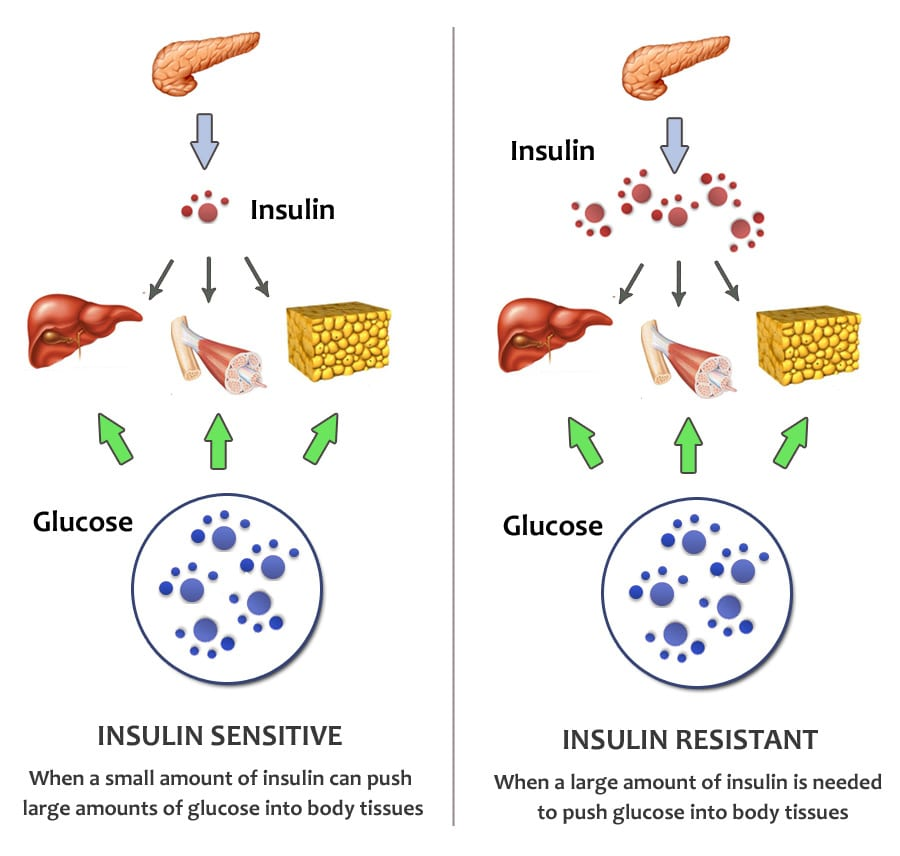 Do Keto Diets increase Insulin Resistance?
