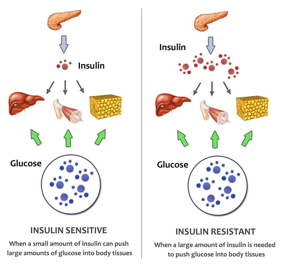Do Keto Diets increase Insulin Resistance?